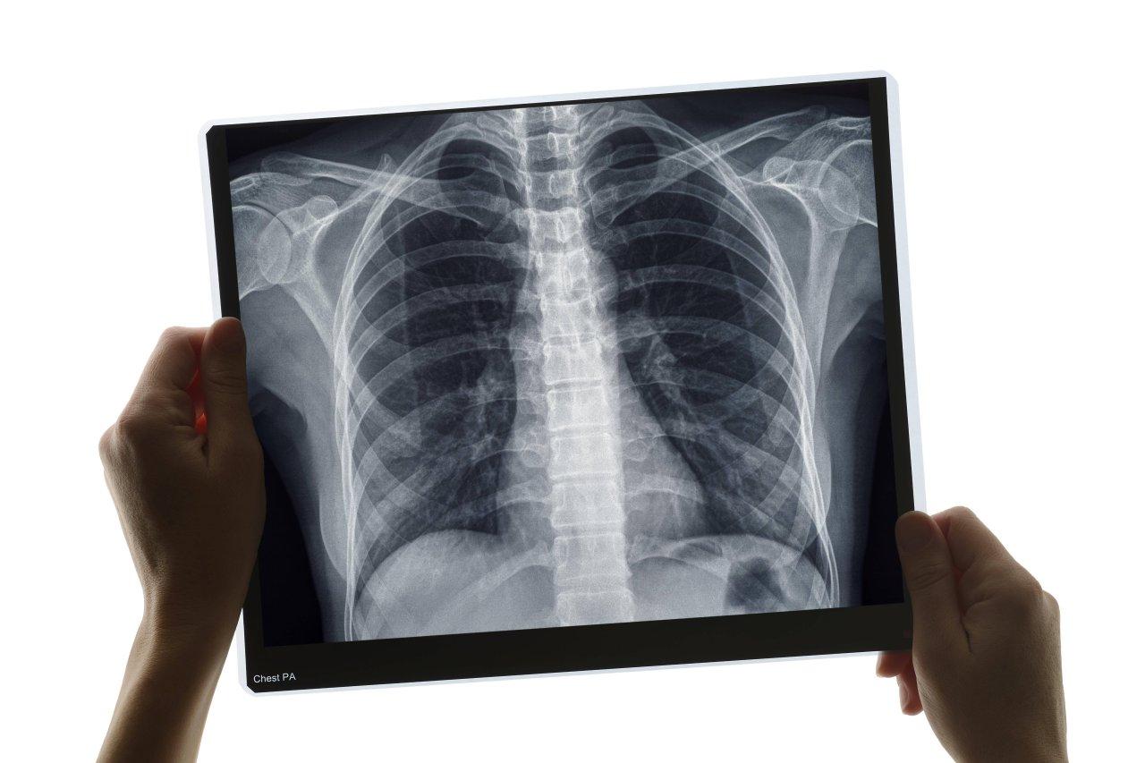 Forscher schafften es eine KI zu kreieren, die mithilfe von Röntgenbilder die Lebenserwartung voraussagen kann.