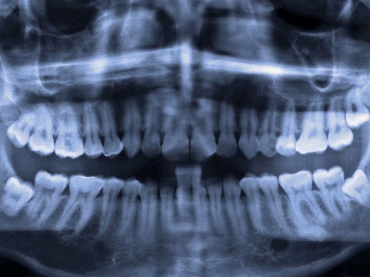 Röntgenaufnahmen mit Weisheitszähnen.
